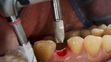 Dlouhodobá studie zkoumá rizikové faktory pro krátké zubní implantáty