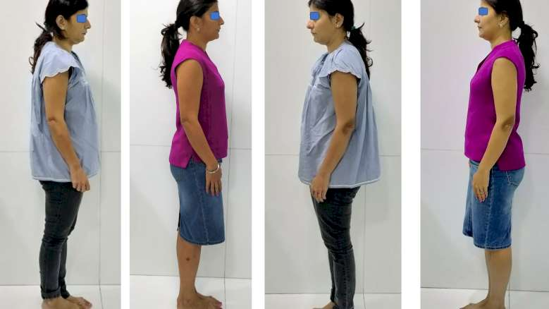 A Clinical Observation: Relation Between Dental Occlusion & Posture