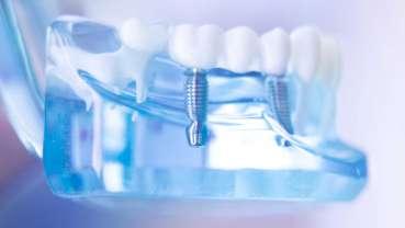 Une nouvelle technologie pourrait améliorer l'intégration des implants dentaires métalliques