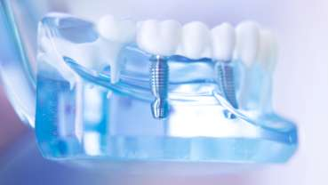 Novel technology could improve efficacy of metal-based dental implants