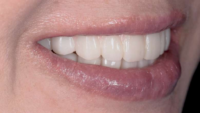 Customised aesthetics for provisional profile prosthesis with ceramage gum