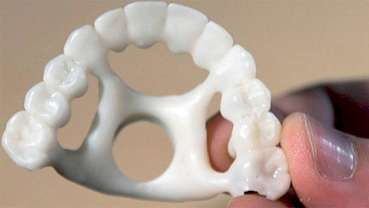 Hybrid Technologies grows business with full-arch palatal Jigs 3D printed on NextDent 5100
