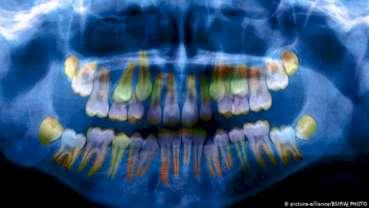 Úroveň stresu se projevuje na zubech