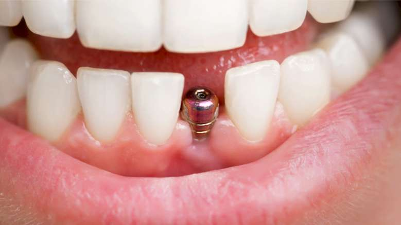 Journal celebrates centennial with article on how implants have influenced restorative dentistry