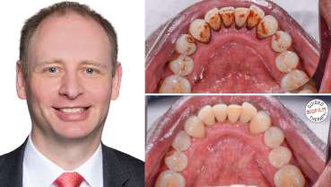 Oral biofilm: A concern for all dental professionals
