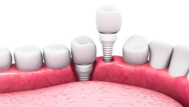 Nanokeramik aus der Kugelmühle für stabilere Zahnimplantate