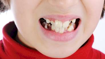 Oral health emphasised in Northern Ireland health funding report