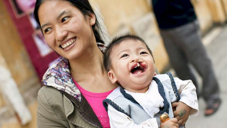 Barriers to cleft lip and palate surgery persist in Vietnam