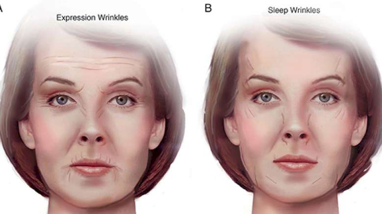 Study shows stomach- and side-sleeping positions cause facial wrinkles over time