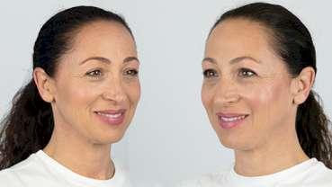 Dermatologia: esperti italiani promuovono gli skinbooster