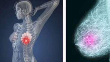 Tumore al seno: un modello virtuoso per la cura delle donne