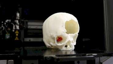 Intervento innovativo e non invasivo grazie alla stampa 3D