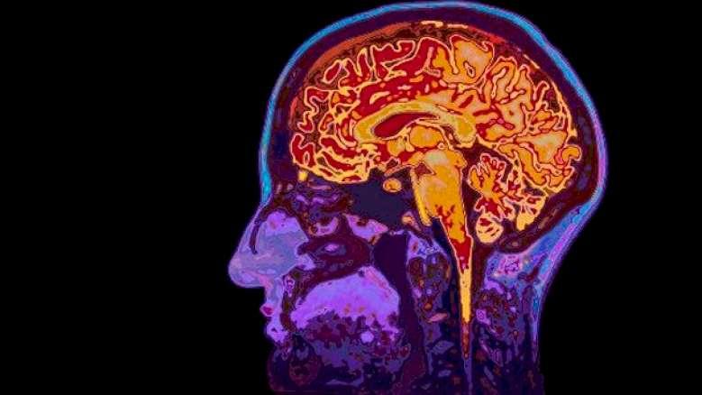 Giornata Mondiale contro il mal di testa: l'Emicrania è una malattia