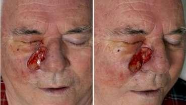 Aufkommen von Hauttumoren im Gesicht nimmt stark zu