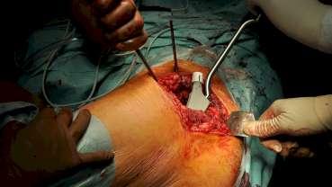 Künstliches Knie- und Hüftgelenk: Lebenslange Wachsamkeit bei Infekten und kleinen Verletzungen