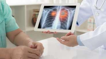 Neue diagnostische und therapeutische Methoden bei Lungenkrebs