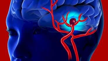 Neue Behandlungsoption bei komplizierten Hirnaneurysmen