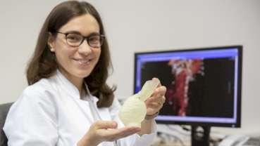 Innovative 3D-Druckmodelle helfen Patienten mit Aortenaneurysmen