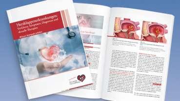 Herzklappen-Ersatz mit dem Katheterverfahren TAVI: für wen geeignet?