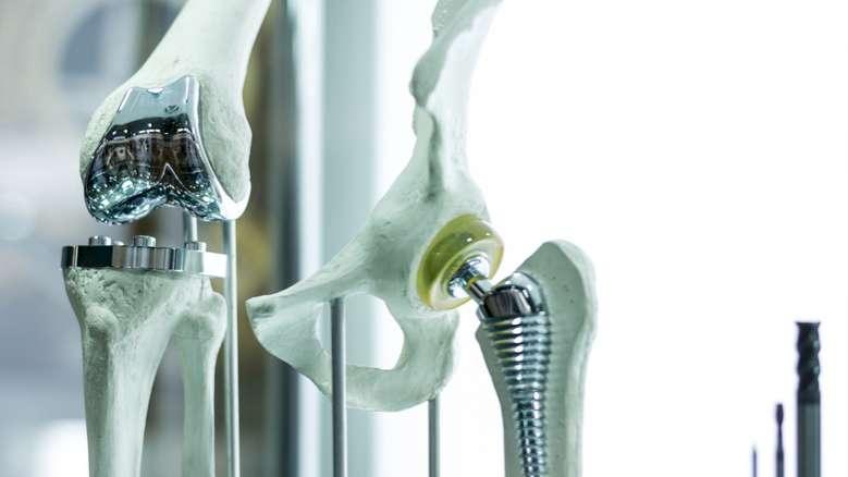 Bundestag beschließt Gesetz zur Errichtung von Implantatregister
